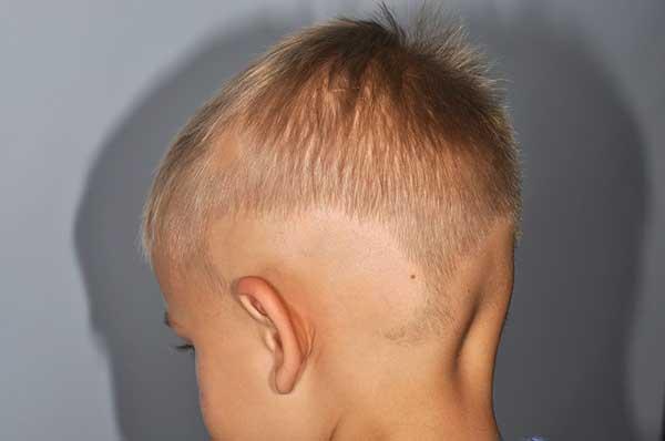У ребенка выпадают волосы клоками причины
