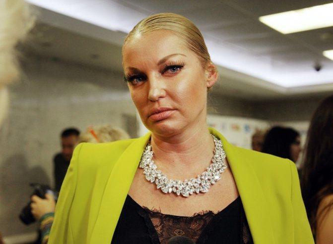 Анастасия Волочкова (желтый)