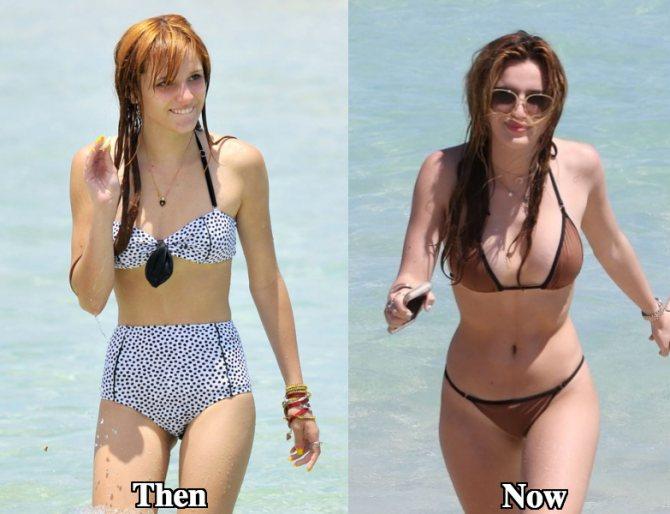 Белла торн фото до и после пластики