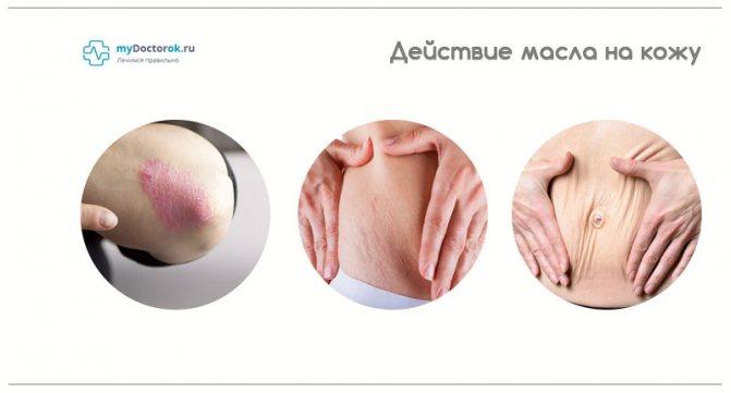 Благотворное влияние масла на кожу