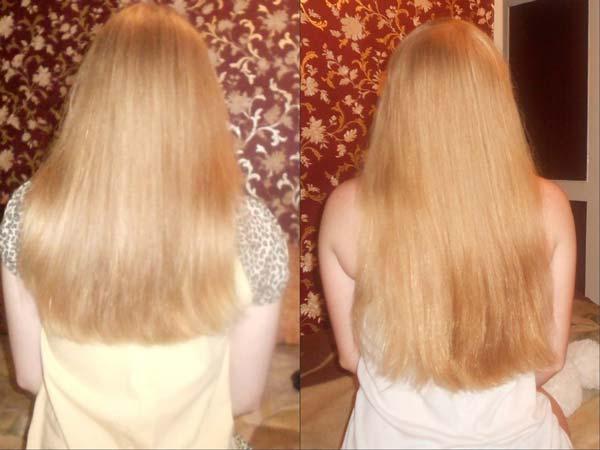 Рыбий жир от выпадения и для роста волос
