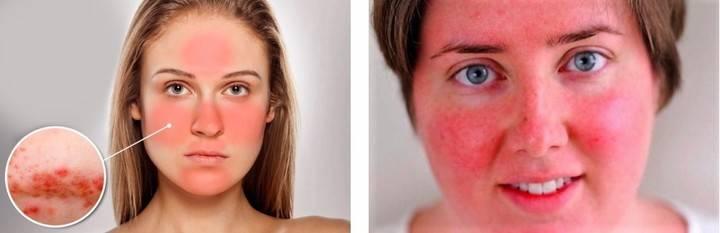 болезненная краснота на лице