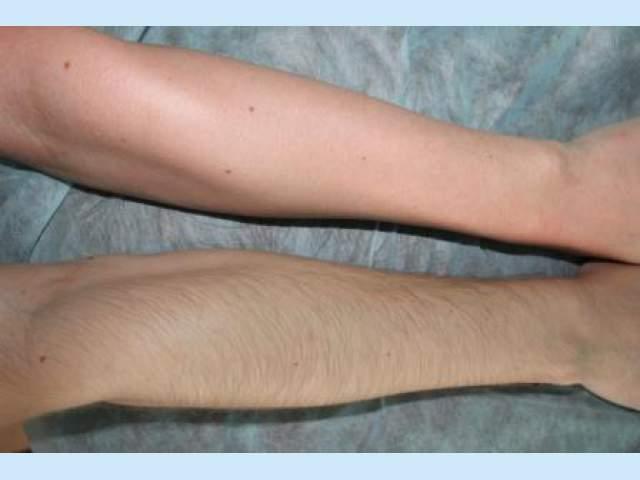 Бритье рук: до и после