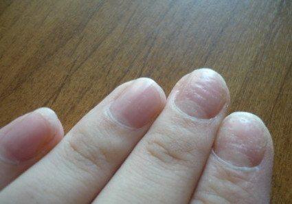 Часто изменения во внешнем виде ногтевых покровов помогают врачам в диагностике