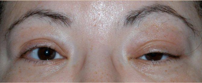 чем лечить отек и опухоль глаза