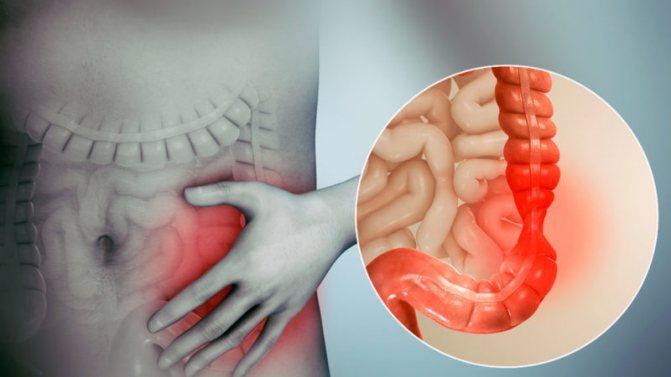 Что можно есть при синдроме раздраженного кишечника?