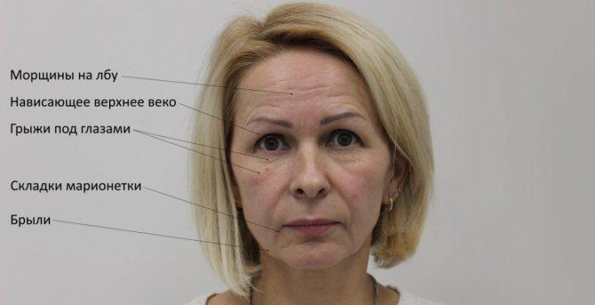 Деформационный тип лица