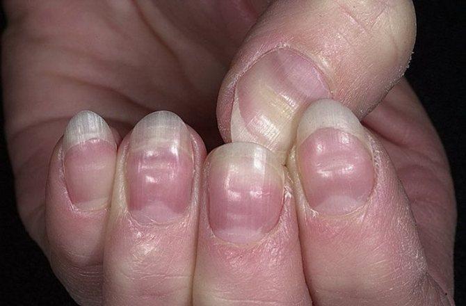 Деформация и изменение формы поверхности ногтей