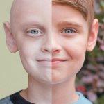 ДО и ПОСЛЕ химиотерапии