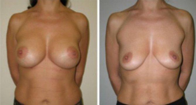 до родов грудь была упругая 4