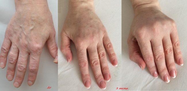 эффект после липофилинга рук