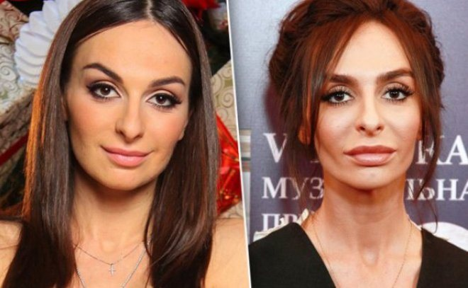 Екатерина Варнава до и после пластической операции