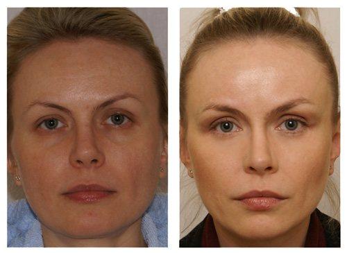 Эндоскопическая подтяжка лица фото до и после