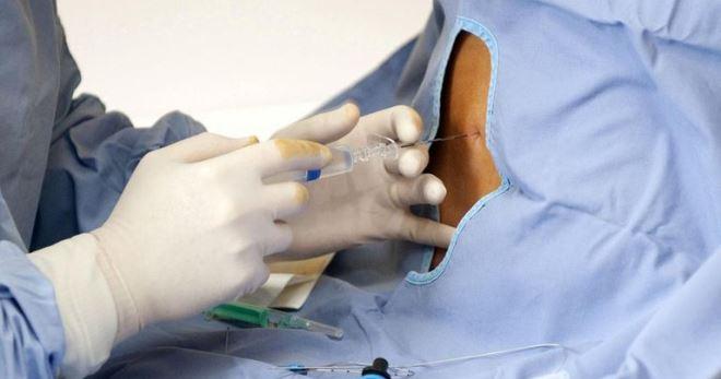 Эпидуральная анестезия при кесаревом сечении – все особенности обезболивания