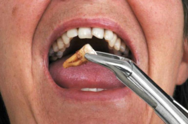 Если зуб выпал легко и безболезненно,