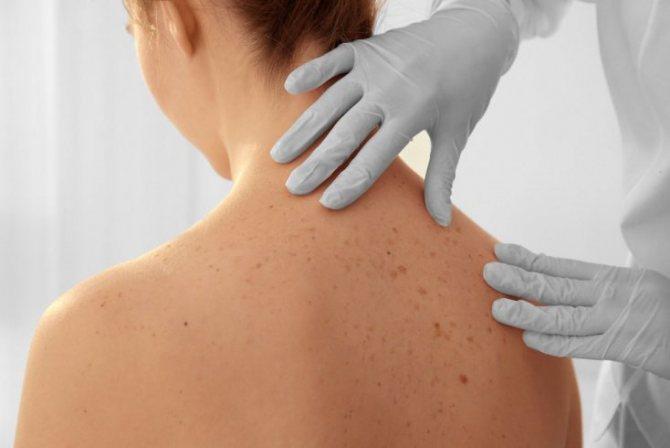 Факторы, способствующие возникновению прыщей на плечах и коже спины