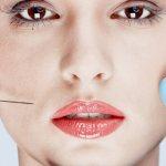Филлеры в скулы — отличная альтернатива пластической хирургии