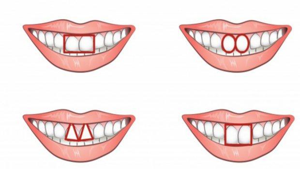 Формы зубов