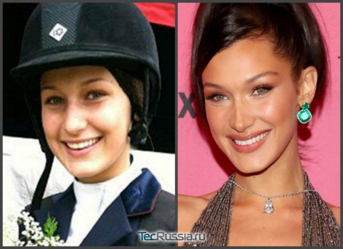 фото Беллы до и после пластики носа