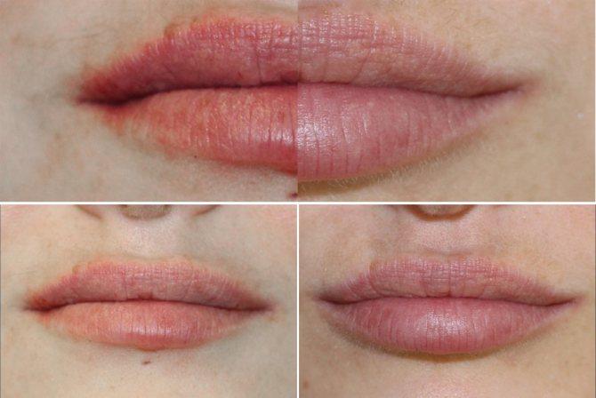 фото до и после липофилинга