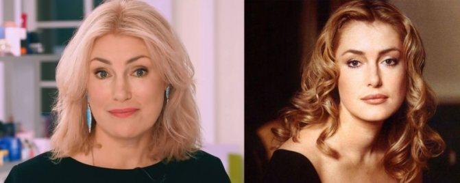 Фото Марии Шукшиной до и после пластики