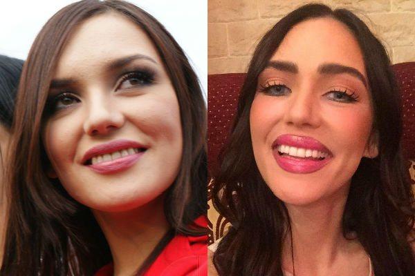 Фото Ольги Серябкиной до и после пластики