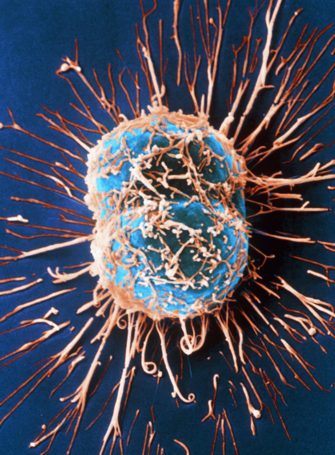 Фото:Рак и его причины