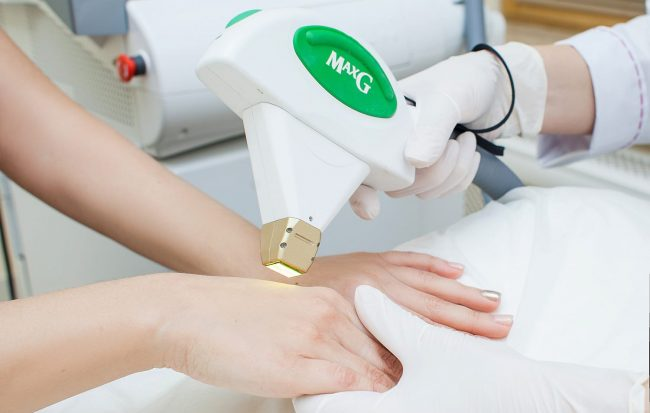 фотоомоложение кожи рук