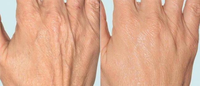 фракционная терапия для молодости рук