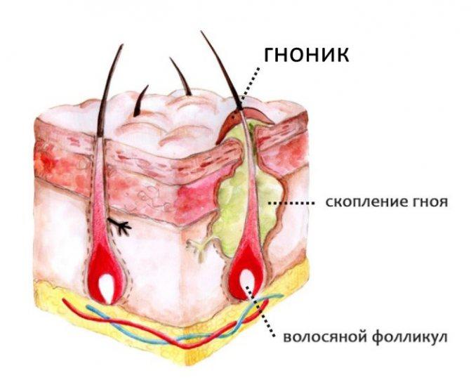 Гнойники на голове в волосах. Причины, лечение антибиотиками, народные средства