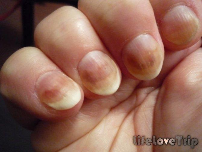Грибковые заболевания ногтей бывают инфекционного и неинфекционного генеза.