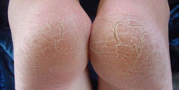 Грибок пяток: как выглядит (ФОТО) и как лечить микоз на пятках