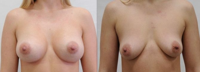 грудь до и после родов - была хорошая троечка
