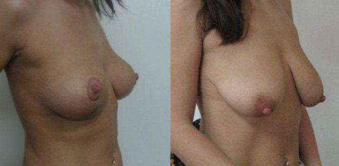 грудь обвисла после родов