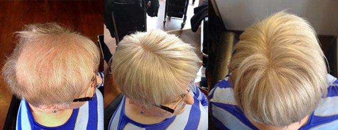 Hair Wear до и после