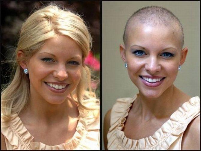 Химиотерапия – не приговор для волос