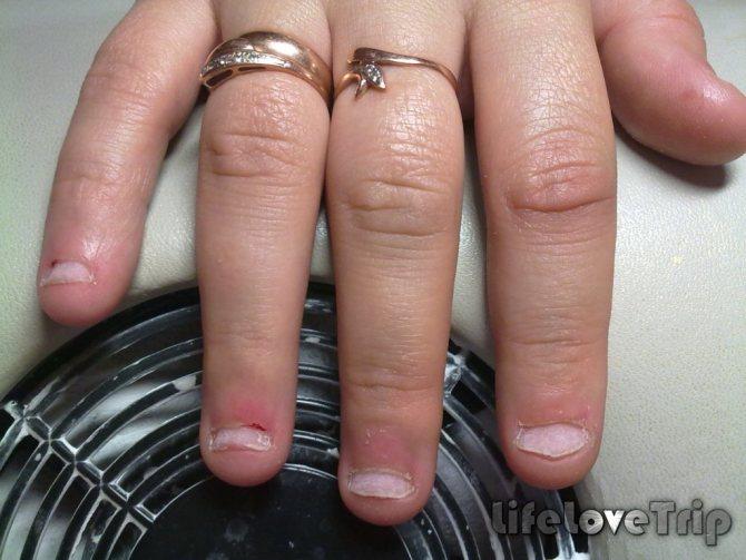 Иногда ногти растут некрасивыми из-за заболеваний внутренних органов.