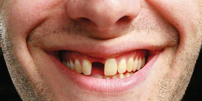 К чему выпал передний зуб во сне