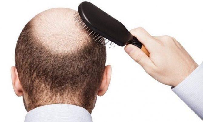 Как быстро отрастить волосы мужчине