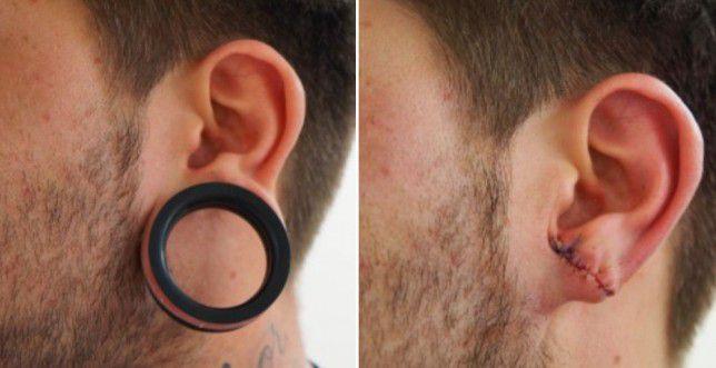 Как делают тоннели в ушах уход осложнения