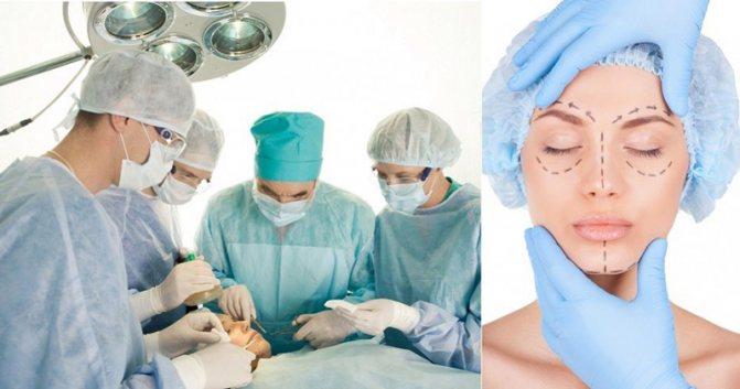 Как исправить кривой нос — основные способы