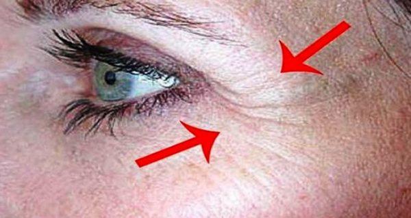 Как избавиться от морщин под глазами