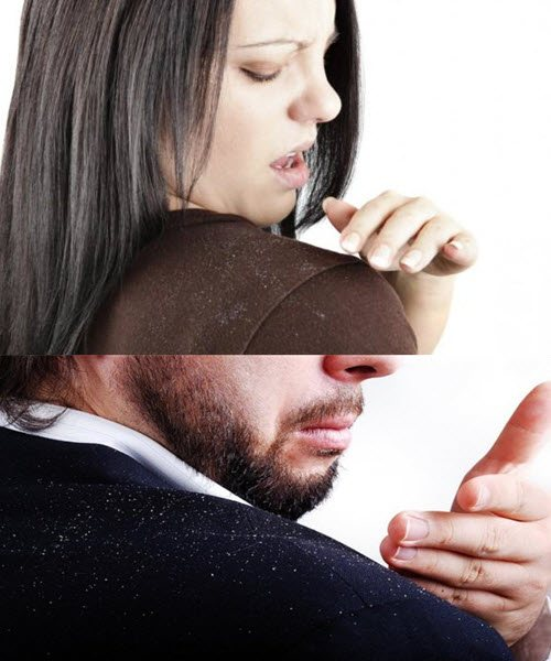 как избавится от перхоти и зуда головы