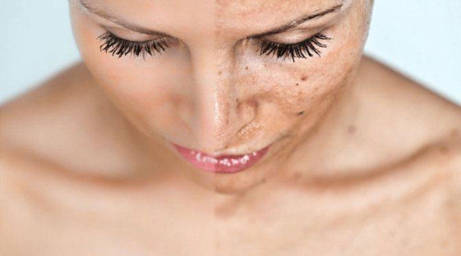 Как избавиться от пигментных пятен на коже