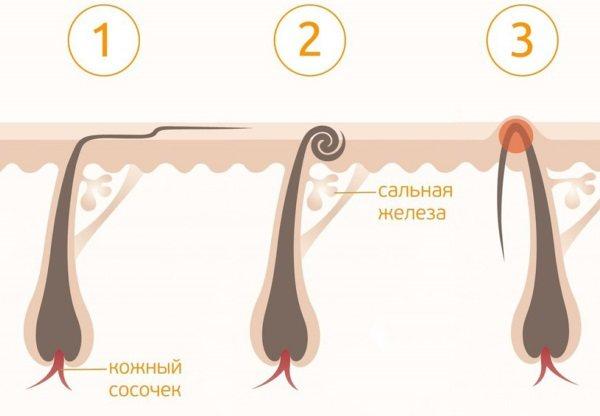 Как навсегда избавиться от волос на теле. Народные средства, косметологические процедуры
