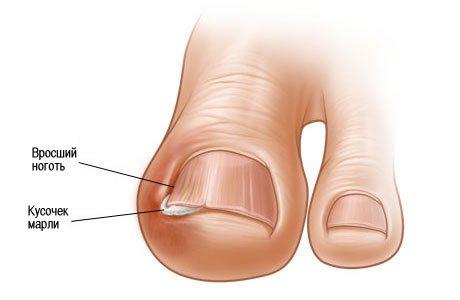 Как размягчить вросший ноготь?