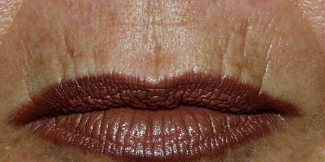 Как убрать морщины около губ идущие вниз