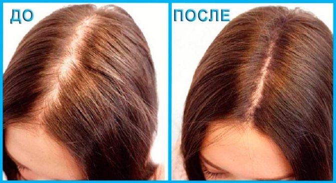 Как ускорить рост волос на голове — проверенные способы