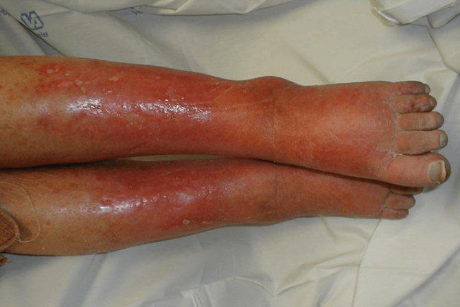 Как выглядит воспаление подкожно-жировой клетчатки.
