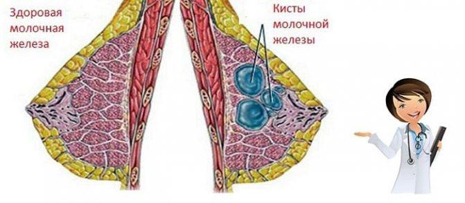 киста проток в груди